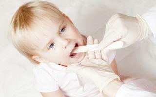 Распознаем и определяем лечение ларингита у детей