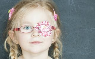 Лечение и причины Амблиопии у детей
