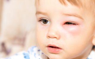 Причины и лечение отечности глаз у ребенка