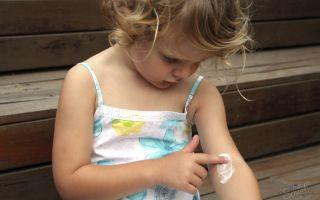 Симптомы и лечение опоясывающего лишая (герпеса) у детей
