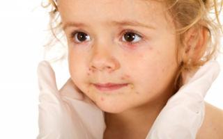 Аллергическая сыпь у  ребенка