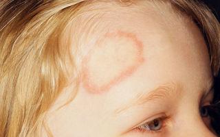 Причины, симптомы и лечение стригущего лишая у детей