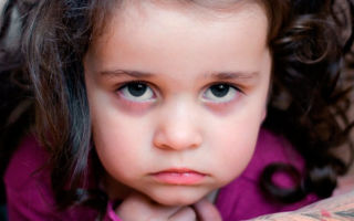 Синяки (темные круги) под глазами у ребенка — почему появляются и как лечить