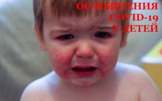 Осложнения у детей после Коронавируса (и синдром Кавасаки)