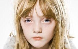 Причины и лечение белой лихорадки у детей