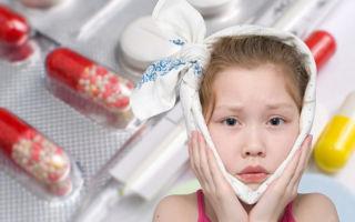 Профилактика, симптомы и лечение эпидемического паротита у детей (свинки)