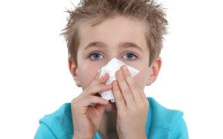 Кровь из носа у ребенка — причины и как ее остановить