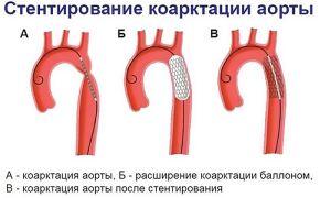 Коарктация аорты у детей — причины, типы, лечение