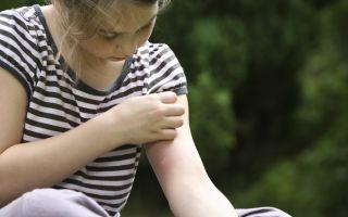 Аллергия на укусы комаров и прочих насекомых у детей
