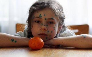 Обнаружение и лечение ветряной оспы у детей