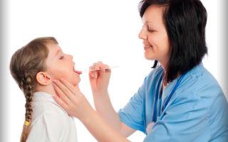 Фолликулярная ангина в детском возрасте: причины, симптомы, лечение