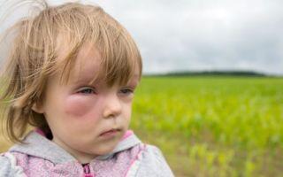 Причины возникновения и лечение отека квинке у детей