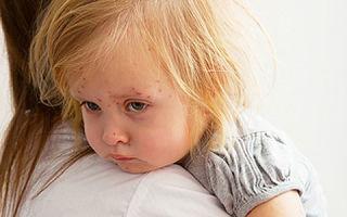 Корь у ребенка: признаки, лечение, рекомендации врачей
