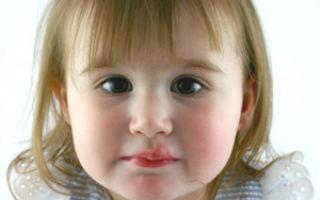 Стоит ли начинать паниковать если у ребенка волдыри во рту?