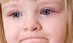 Причины красных глаз у ребенка и их лечение