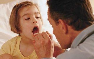 Герпесная ангина у детей — варианты лечения, признаки и первопричины