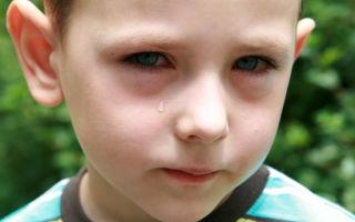 Причины мешков под глазами у ребенка и их устранение