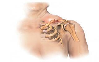 Перелом ключицы и другие распространенные детские переломы