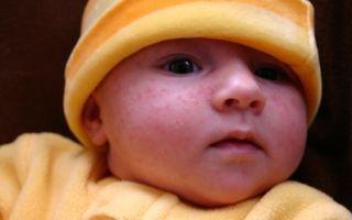 Как избавить новорожденного от акне