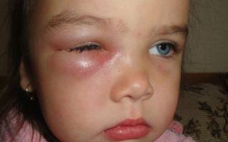 Что делать, если у ребенка опух глаз или верхнее и нижнее веко