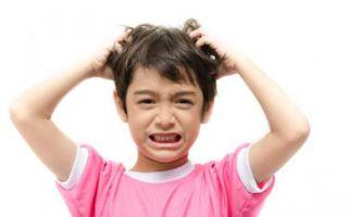 Перхоть у ребенка — причины и лечение в любом возрасте