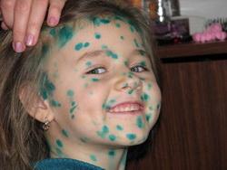 Девочка в зеленке от ветрянки