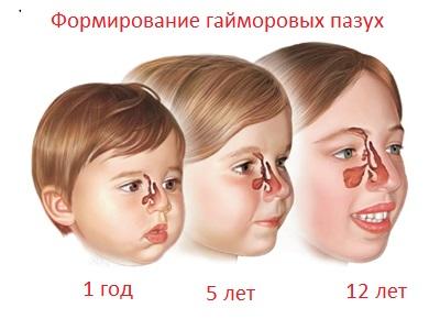 Формирование гайморовых пазух у детей