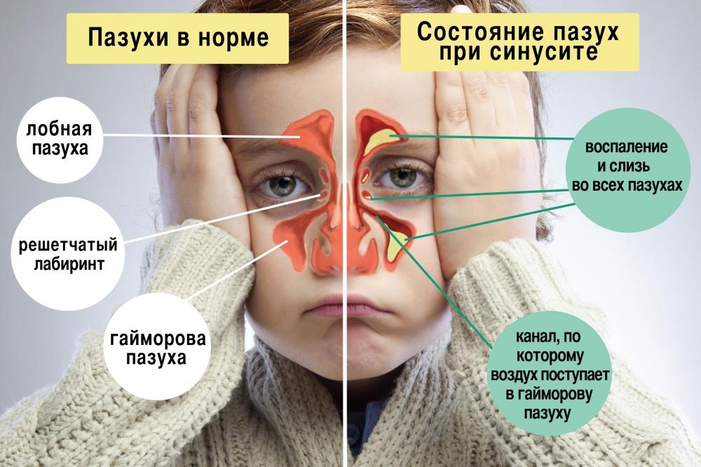 Сравнение пазух у ребенка при болезни и без нее