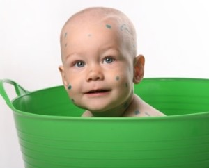 Ребенок купается при ветрянке