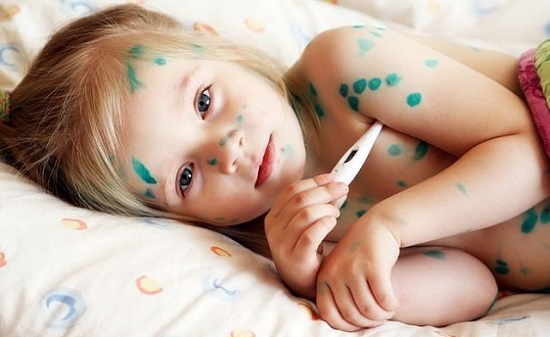 Ветрянка у детей до года: симптомы и лечение