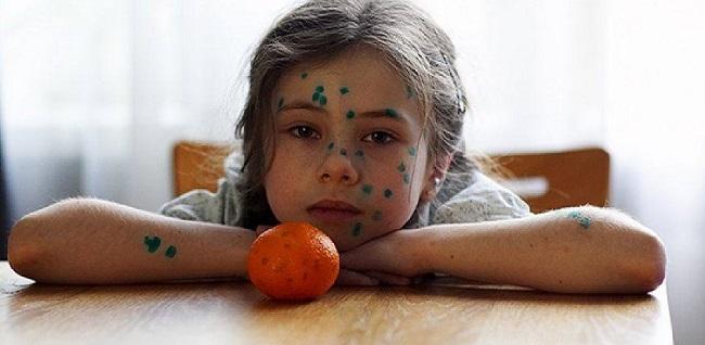 Ребенок с зеленкой на лице