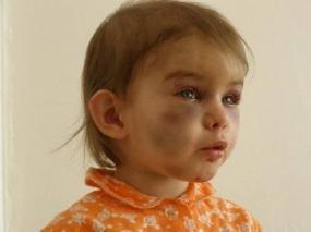 ужасные перелому у ребенка