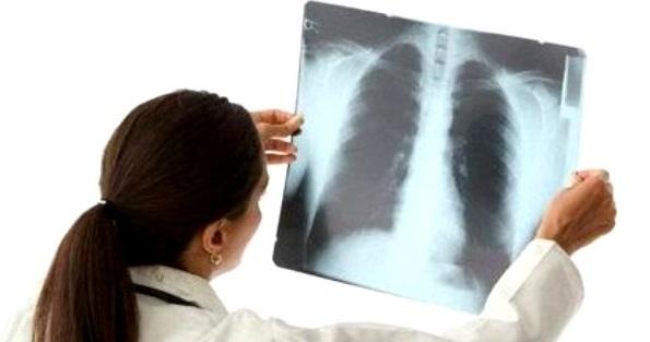 врач смотрит воспаление легких на рентгеновском снимке