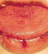 фото болезни кавасаки