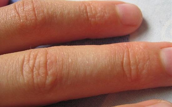Сыпь на руке у ребенка в виде маленьких прыщей на руках
