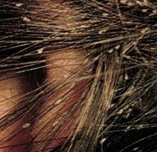 вши на волосах
