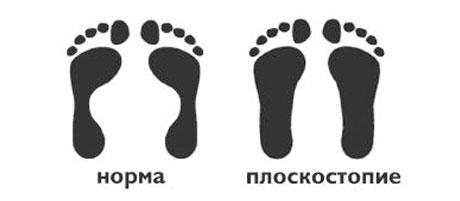 Сравнение плоскостопия и нормальной стопы