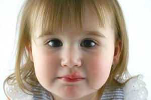 грустная девочка с волдырями во рту