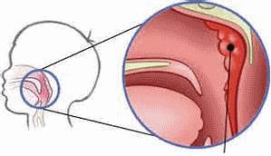 Схема расположения аденоидов в горле