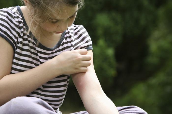 укус комара у девочки