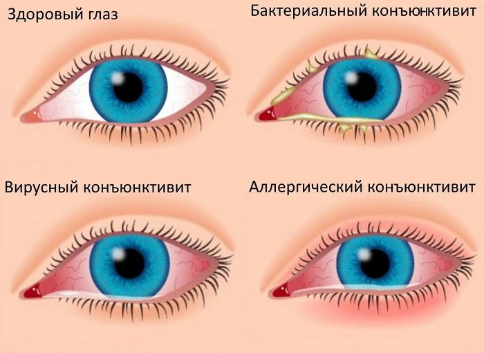 Краснота глаз при конъюнктивите