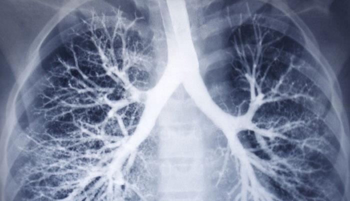Рентгенограмма бронхов человека