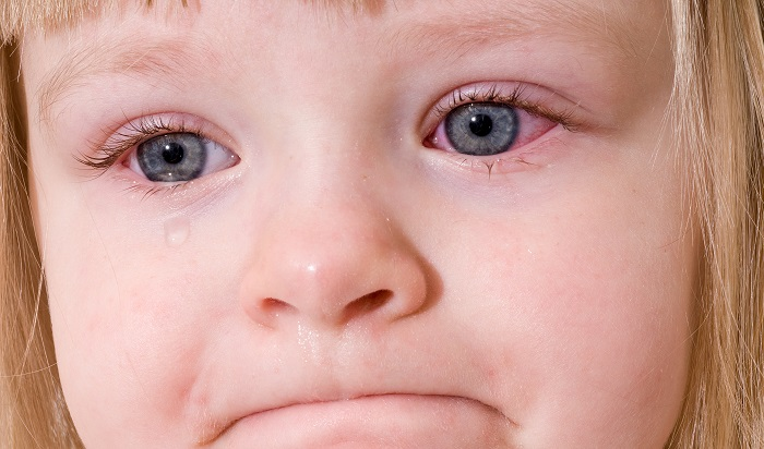 Покраснение глаз  причины и лечение у детей и взрослых