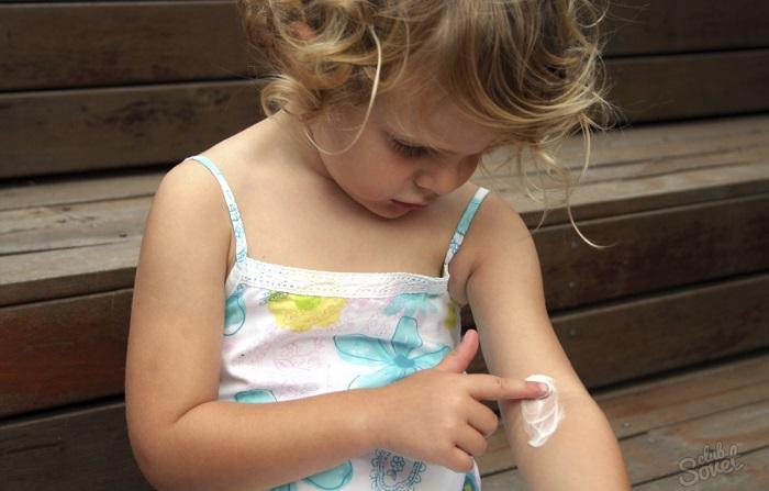 Опоясывающий лишай симптомы лечение у ребенка
