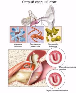 Схема острого отита среднего уха и инфекции, из-за которых он появляется