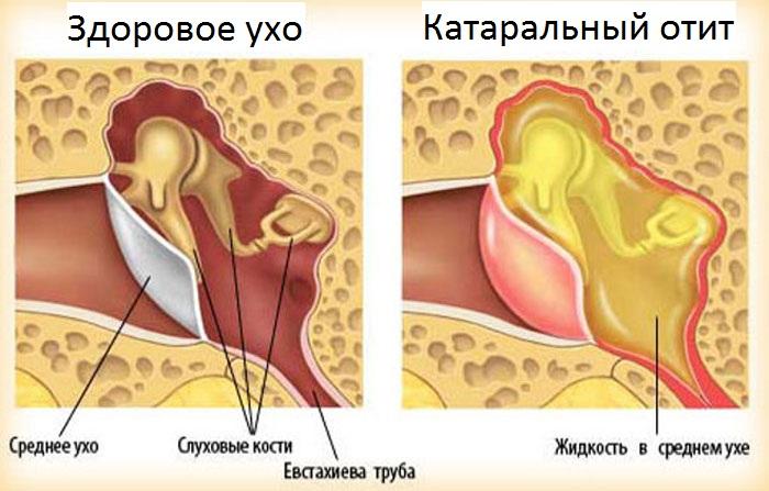 Возникновение катарального отита