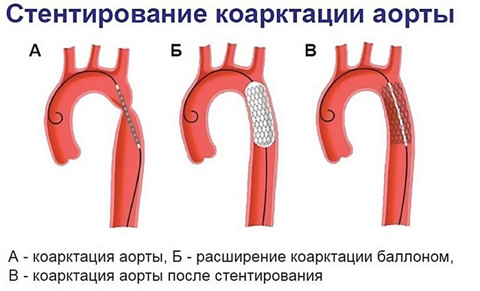 Стентирование коарктации аорты на фото