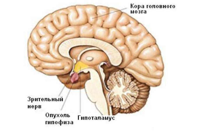 Схема опухоли головного мозга у ребенка