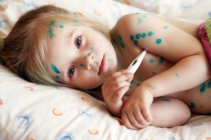 Пузырчатка у ребенка