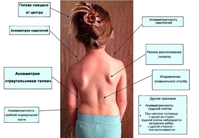 Симптомы сколиоза у детей